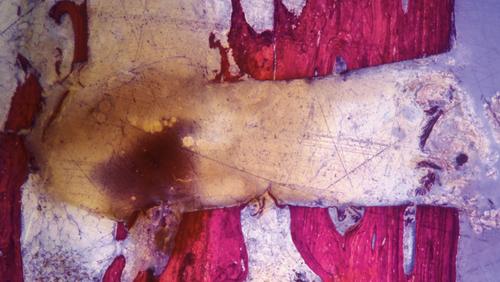 Макровибрации – костный бор