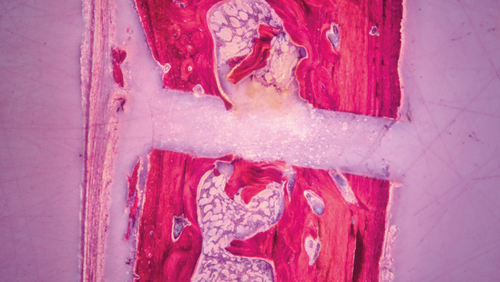микровибрации пьезохирургического аппарата